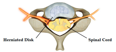 What is Microdiscectomy for herniated disc?