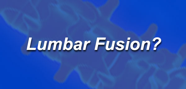 What is a Lumbar Spine Fusion?